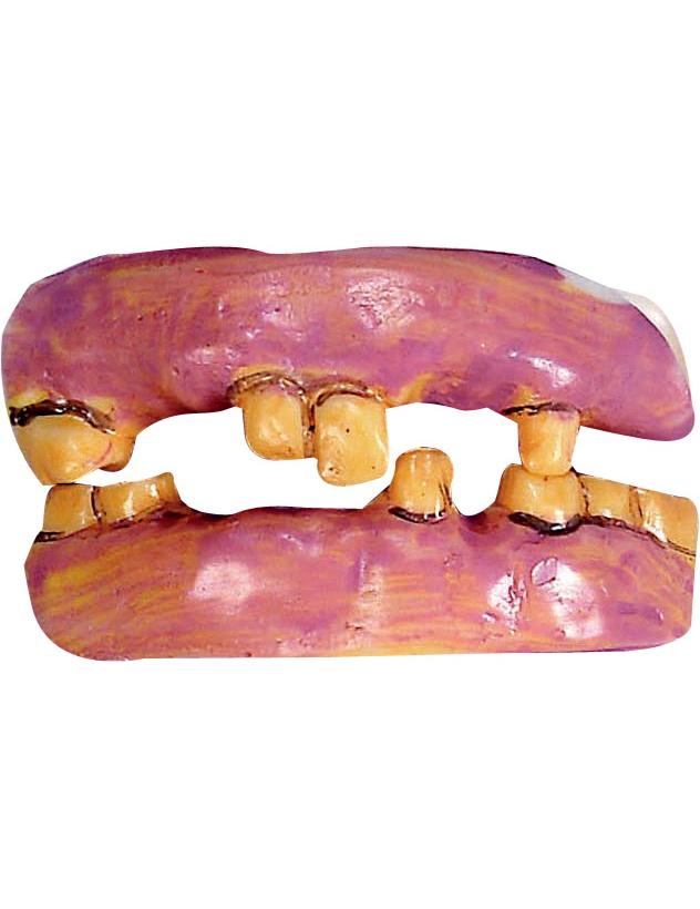 Dentiera con denti gialli e vecchi - Finestra tra i denti ...