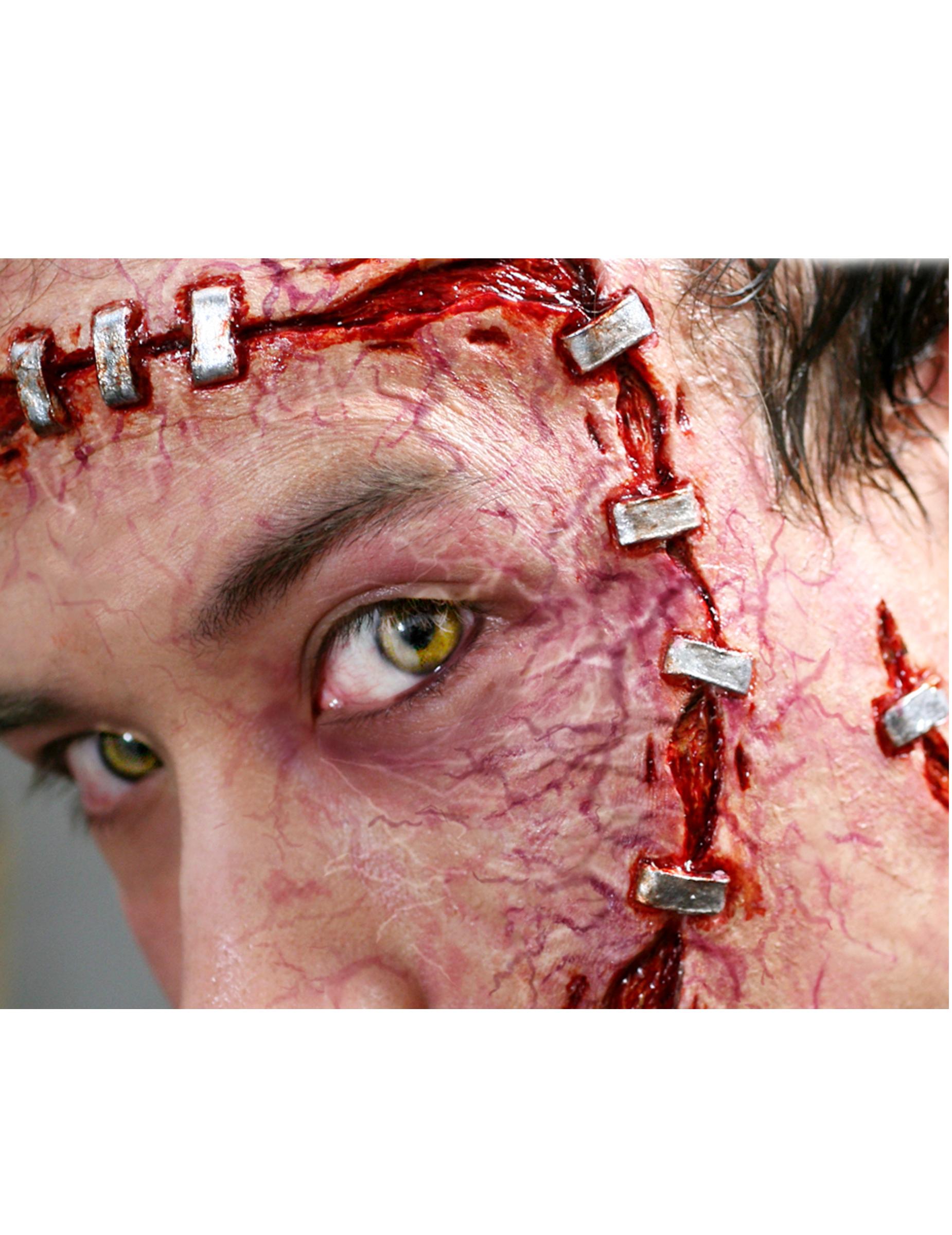 Les blessures pendant les rapports sexuels chez la femme
