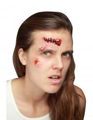 Fausse plaie avec points de suture