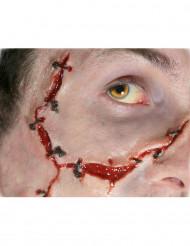 Blessures points suture transfert à l