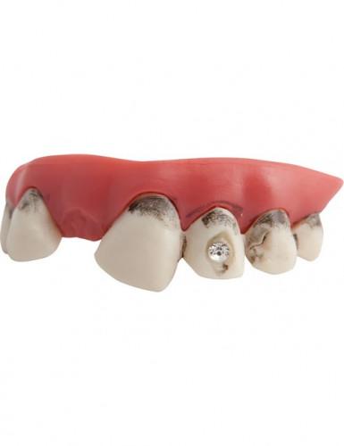 Dents sales avec faux diamants